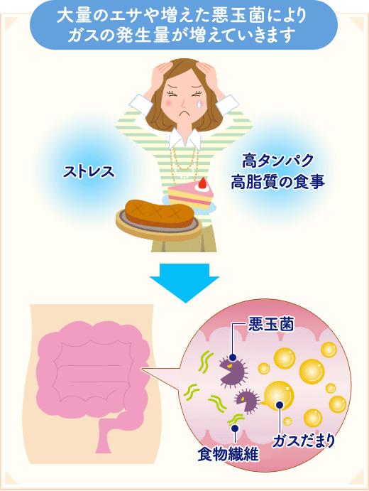 ガス だまり 原因 おならがよく出る、お腹のガスが気になる、原因と治療方法|京都市の...
